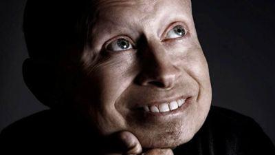 Verne Troyer ('Austin Powers') muere a los 49 años