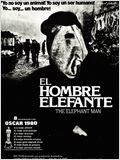 El hombre elefante