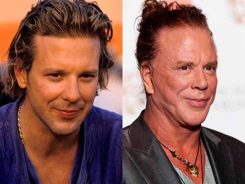 20 actores antes y después de pasar por quirófano: Mickey Rourke ...