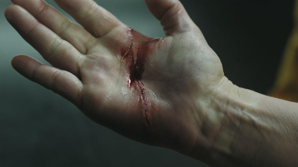 Herida de Mercedes